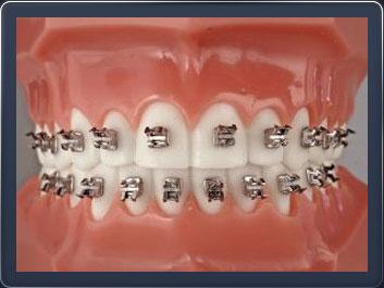 виниры на зубы реклама